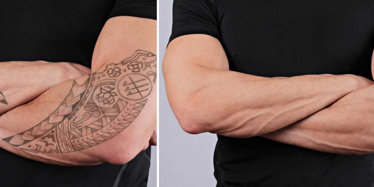 Laser Tattoo Removal: What Is It, How Does It Work, and Why Should I ...